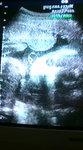 2008.12.13 baby